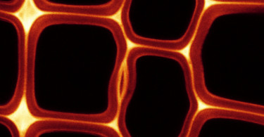 Confocal microscopy showing lignin in Radiata Pine cells walls.